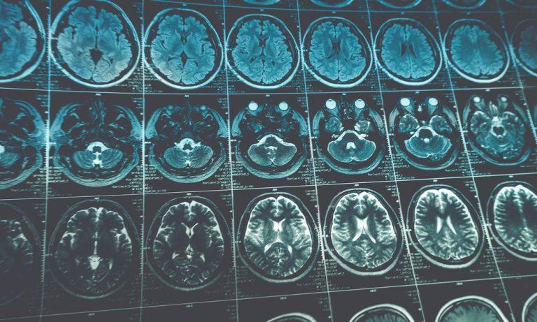 mri images of a human head